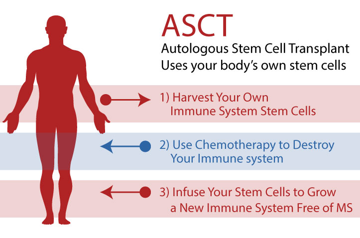 Your body's own stem cells cure you during HSCT procedure for MS