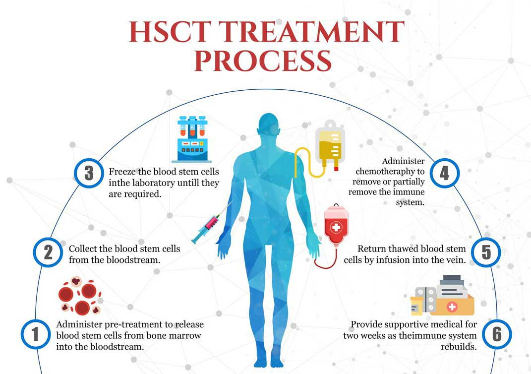 The image outlines the stages of HSCT treatment for CIDP