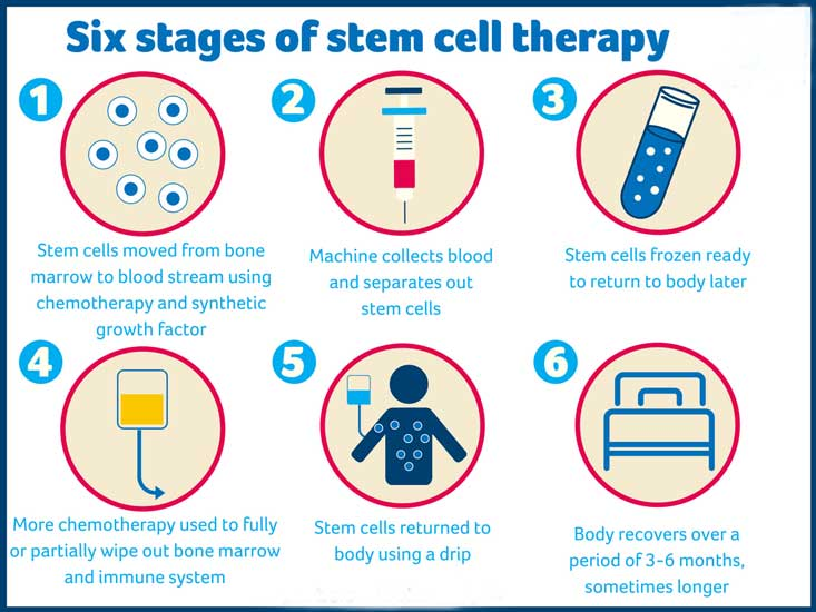 How HSCT Therapy Works